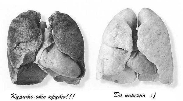 Легкие курящего